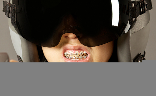 dca-blog_caring-for-braces-retainers